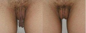 antes y después de una labioplastia
